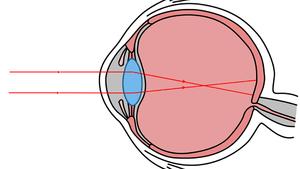 myopia diagram gcse)